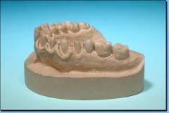 Formierski gips dentystyczny klasy II