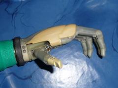 Proteza mioelektryczna ręki