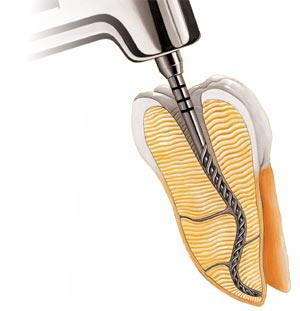 Zamówienie Leczenie kanałowe - Endodoncja