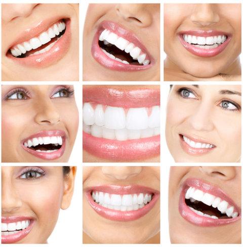 Zamówienie Wybielanie zębów