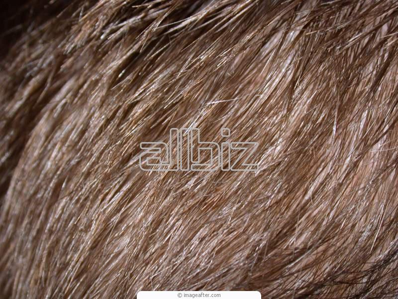 Zamówienie Transplantacja włosów